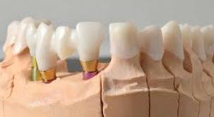 estructurasobre implantes